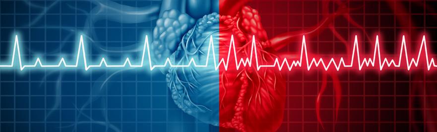 Regular and irregular heart beat graph